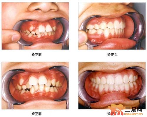 儿童牙齿矫正对比